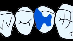 歯科治療 インレー