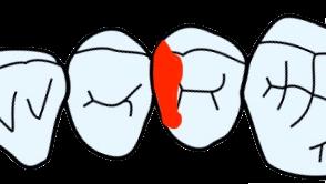 歯科治療 齲蝕