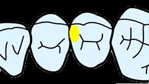 歯科治療 CR