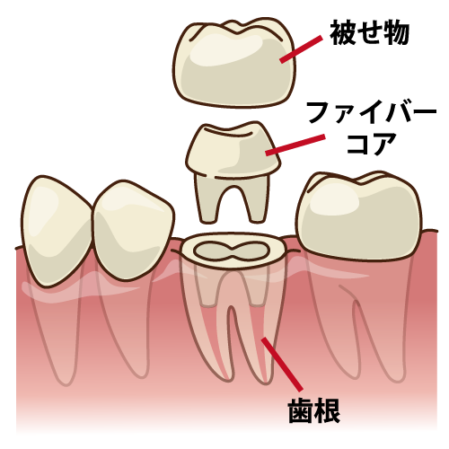 歯科治療 ファイバーコア