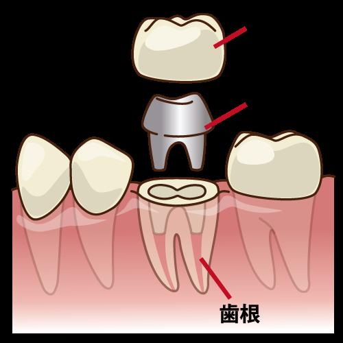 歯科治療 メタルコア