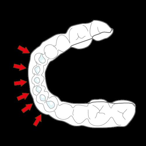 [歯のホワイトニング] オススメの種類、治療の流れ、値段について マウスピース