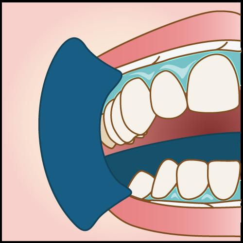 [歯のホワイトニング] オススメの種類、治療の流れ、値段について