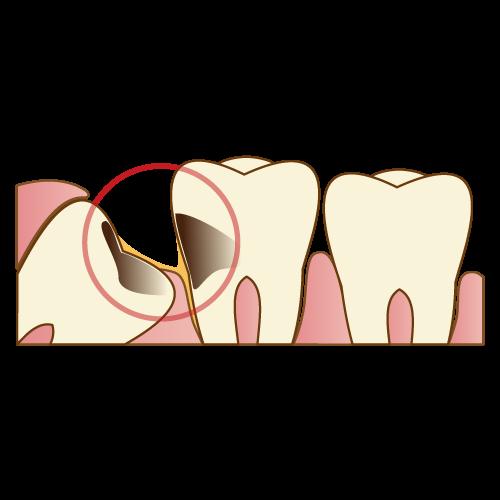 [歯科治療]親知らずの歯について。抜いた方が良いの?費用は?